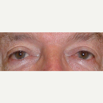 65-74 year old man treated with Eyelid Surgery after 3441180