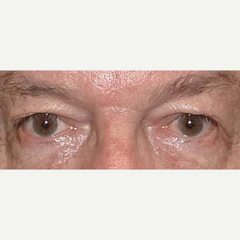 65-74 year old man treated with Eyelid Surgery before 3441180
