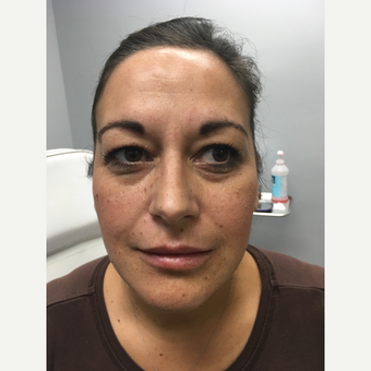 35-44 year old woman treated with Lip Augmentation after 3684530