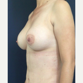25-34 year old woman treated with Breast Augmentation after 3826475