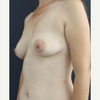 25-34 year old woman treated with Breast Augmentation before 3826475
