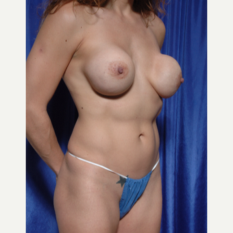 25-34 year old woman treated with Breast Implant Removal before 3318893