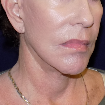 65-74 year old woman treated with MACS Facelift after 3426524