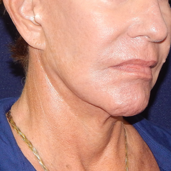65-74 year old woman treated with MACS Facelift before 3426524