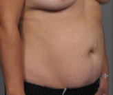 42 year old woman treated with Tummy Tuck before 3287371