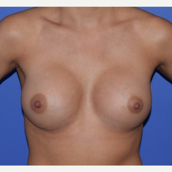 25-34 year old woman treated with Breast Augmentation after 3079180