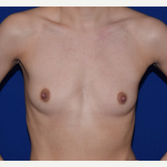 25-34 year old woman treated with Breast Augmentation before 3079180