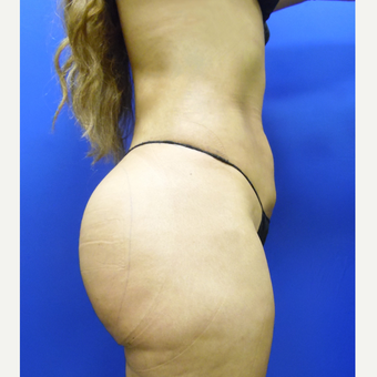 25-34 year old man treated with Butt Implants after 3851719