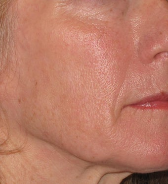 55 year old treated with Voluma in cheeks after 1253788