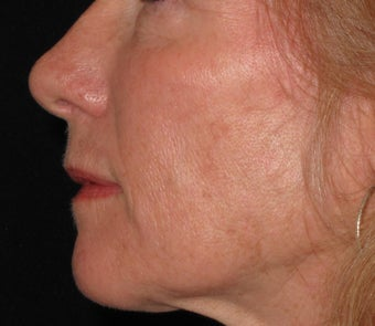 55 year old treated with Voluma in cheeks 1253788