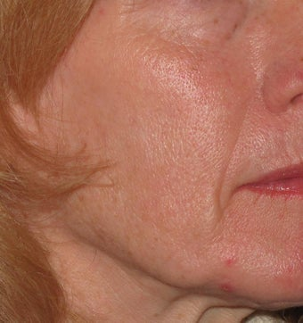 55 year old treated with Voluma in cheeks before 1253788