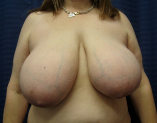 Breast Reduction  before 1357650