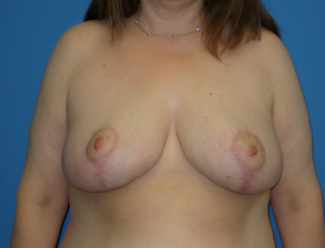 Breast Reduction  after 1357650