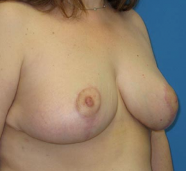 Breast Reduction  1357650