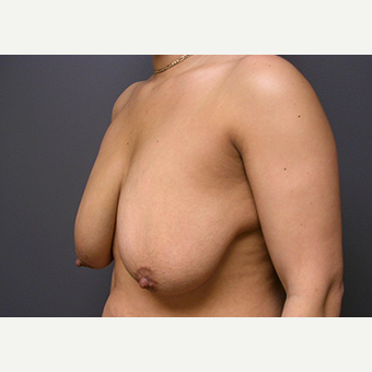 Woman treated with Breast Lift before 1708246