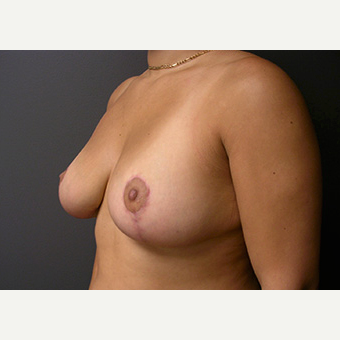 Woman treated with Breast Lift after 1708246