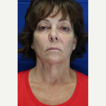 55-64 year old woman treated with Facelift before 3499557