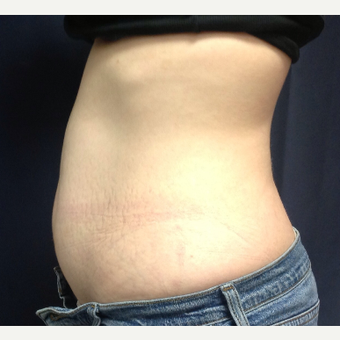 45-54 year old woman treated with SculpSure after 3770176