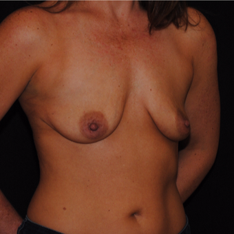 45-54 year old woman treated with Breast Lift with Implants before 3500455