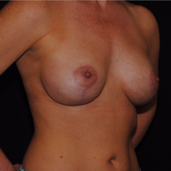 45-54 year old woman treated with Breast Lift with Implants after 3500455
