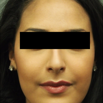 18-24 year old woman treated with Rhinoplasty before 3743280