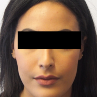 18-24 year old woman treated with Rhinoplasty after 3743280