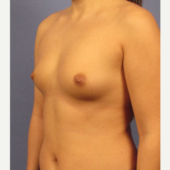 25-34 year old woman treated with Breast Implants before 3106701