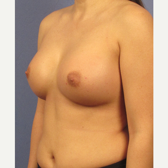 25-34 year old woman treated with Breast Implants after 3106701