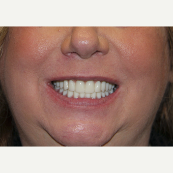 All-on-4 Dental Implants after 2373077