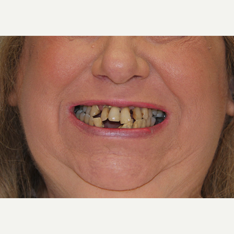 All-on-4 Dental Implants before 2373077