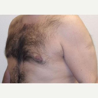 38 year old man treated with Liposuction after 3683785