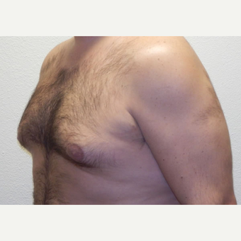 38 year old man treated with Liposuction before 3683785