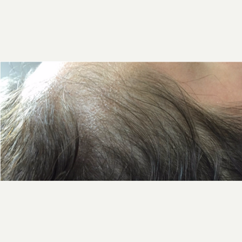 25-34 year old woman treated with PRP for Hair Loss before 3725592