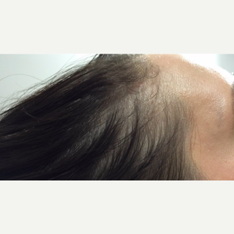 25-34 year old woman treated with PRP for Hair Loss after 3725592