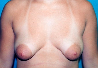 Tuberous Breast Augmentation (Dual Plane ) + Periareolar Mastopexy before 349480
