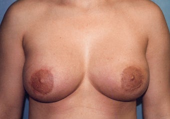 Tuberous Breast Augmentation (Dual Plane ) + Periareolar Mastopexy after 349480