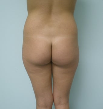 Buttock Augmentation with fat transfer before 398888