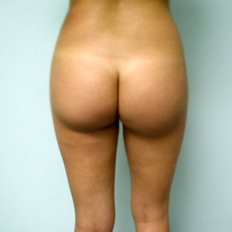 Buttock Augmentation with fat transfer after 398888