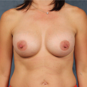 40 year old woman with post-pregnancy breast deflation underwent natural breast augmentation after 3045156