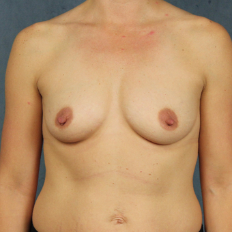 40 year old woman with post-pregnancy breast deflation underwent natural breast augmentation before 3045156