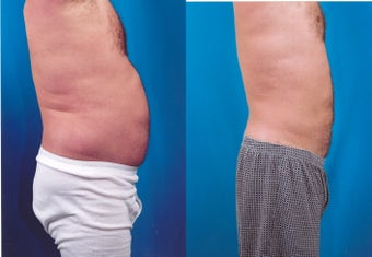 37-year-old man treated with Liposuction. after 347800