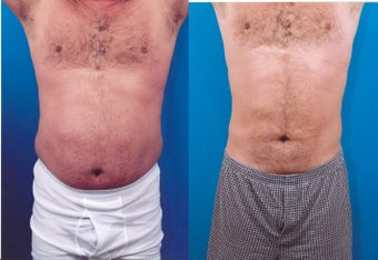 37-year-old man treated with Liposuction. before 347800