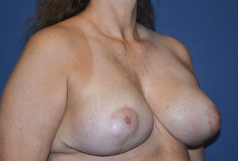 45-54 year old woman treated with Breast Lift and Galaflex internal bra