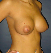Breast Augmentation after 974996