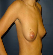 Breast Augmentation before 974996