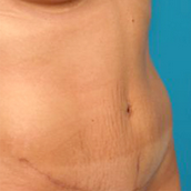 Tummy Tuck after 1596352