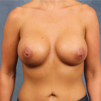 breast augmentation with silicone gel breast implants under the muscle after 3538419