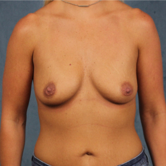 breast augmentation with silicone gel breast implants under the muscle before 3538419
