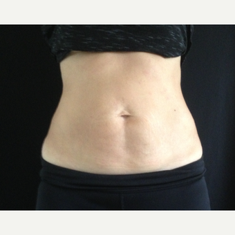35-44 year old woman treated with CoolSculpting after 3141632