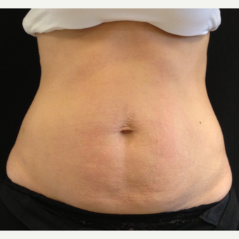 35-44 year old woman treated with CoolSculpting before 3141632